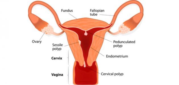 صورة امراض عنق الرحم , اعراض مرض عنق الرحم