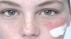 صور علاج حساسية البشرة , تعرفى على حساسيه البشرة