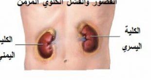 امراض الجهاز البولي , اذى تعرفى امراض الجهاز البولى