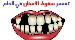 رؤية تساقط الاسنان في المنام , اسنانى وقعت في حلمى