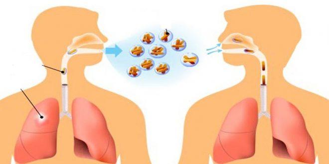 صور علاج الدرن بالعسل , طرق علاج السل واعراضه