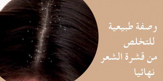 صور وصفات طبيعية للتخلص من قشرة الشعر , قولى وداعا لقشور شعرك