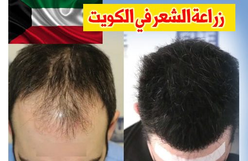 صور تكلفة زراعة الشعر في الكويت , اسعار زراعة شعر الراس