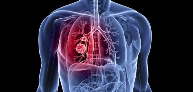 صورة علاج الماء في الرئة , ايه سبب المشكلة دى