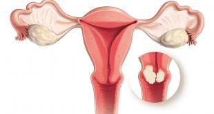 صورة اعراض التهاب عنق الرحم , كل ما يخص عنق الرحم