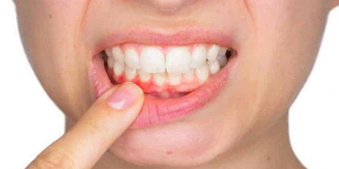 صور علاج التهاب اللثه ورائحة الفم الكريهه , طرق للتخلص من مشاكل فمك المتعدده