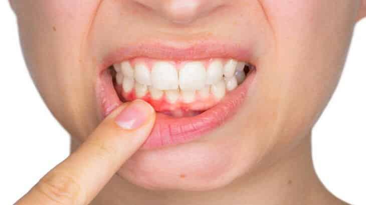صورة علاج التهاب اللثه ورائحة الفم الكريهه , طرق للتخلص من مشاكل فمك المتعدده
