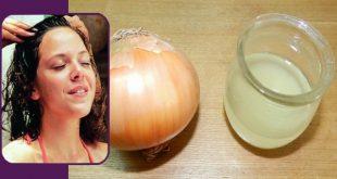 صور فائدة البصل للشعر , مزايا عصير البصل على شعرك
