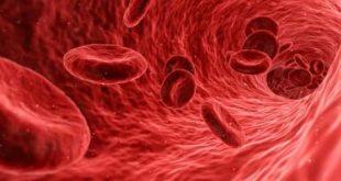 علاج حموضة الدم بالاعشاب , وصفات طبيعيه لمعالجه حموضه الدم