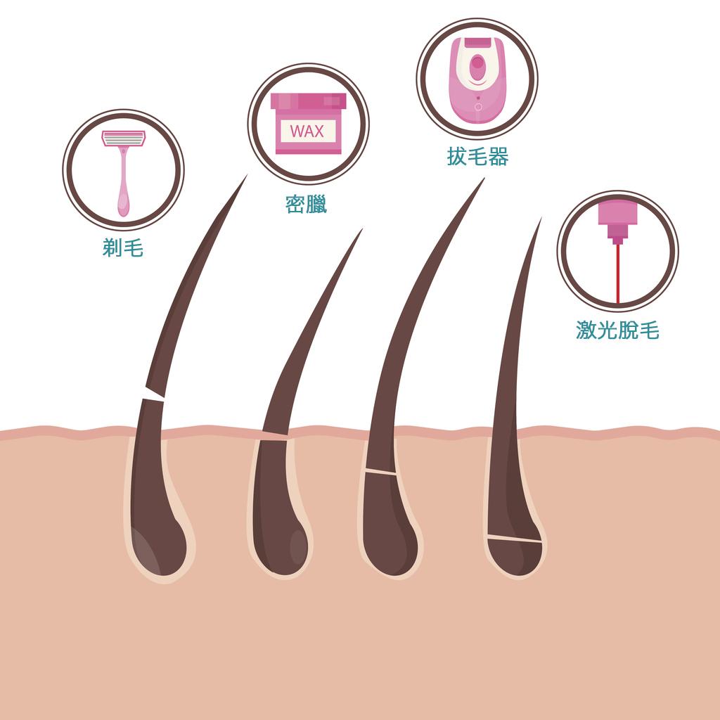 صورة ازالة الشعر نهائيا من الجسم والمناطق الحساسة , النظافة الشخصية