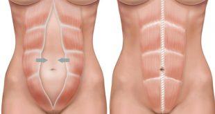 صورة انتفاخ اسفل البطن من علامات الحمل , من الممكن ان تكونى حامل
