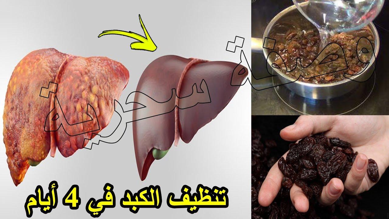 صورة علاج تليف الكبد بالعسل , استخدام العسل لتليف الكبد