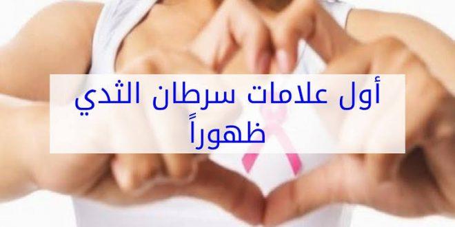 صورة ماهي اعراض سرطان الثدي المبكرة , اشهر اعراض لسرطان الثدى