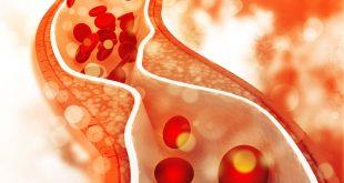 صورة ماهي اعراض الدهون الثلاثية , تاثير الدهون الثلاثيه على جسم الانسان
