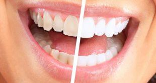 وصفة لازالة الجير من الاسنان , وجود الجير يسبب الاحراج و الازعاج
