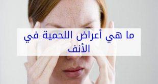 اعراض لحمية الانف , ما الاعراض التى يواجهها المصابون باللحميه