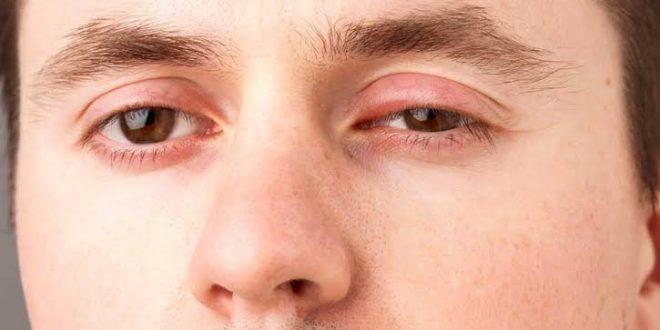 صورة علاج التهاب جفن العين , نصائح للتخلص من بكتريا الجفن
