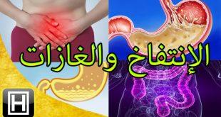 صورة افضل علاج للقولون العصبي والغازات , تخلص من كل اعراض القولون