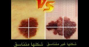صورة اشكال الشامات الخطيره , ماهي الشامات التى تدل علي المرض