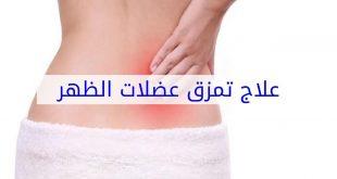 علاج التمزق العضلي , افضل علاج للتمزق العضلي