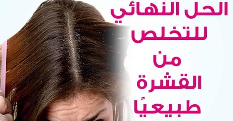 صورة للتخلص من قشرة الشعر نهائيا , نهايه القشره بضغطه واحده