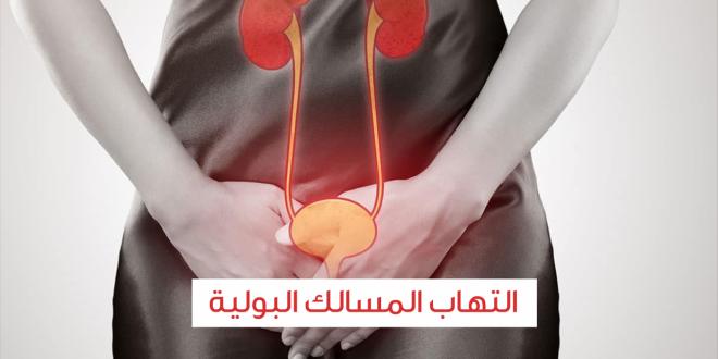صورة اعراض التهاب المثانة , اهم اعراض التهاب في الحوض