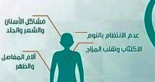 اعراض نقص فيتامين d3 , طريقه سهله لمعرفه نقص فيتامين d3