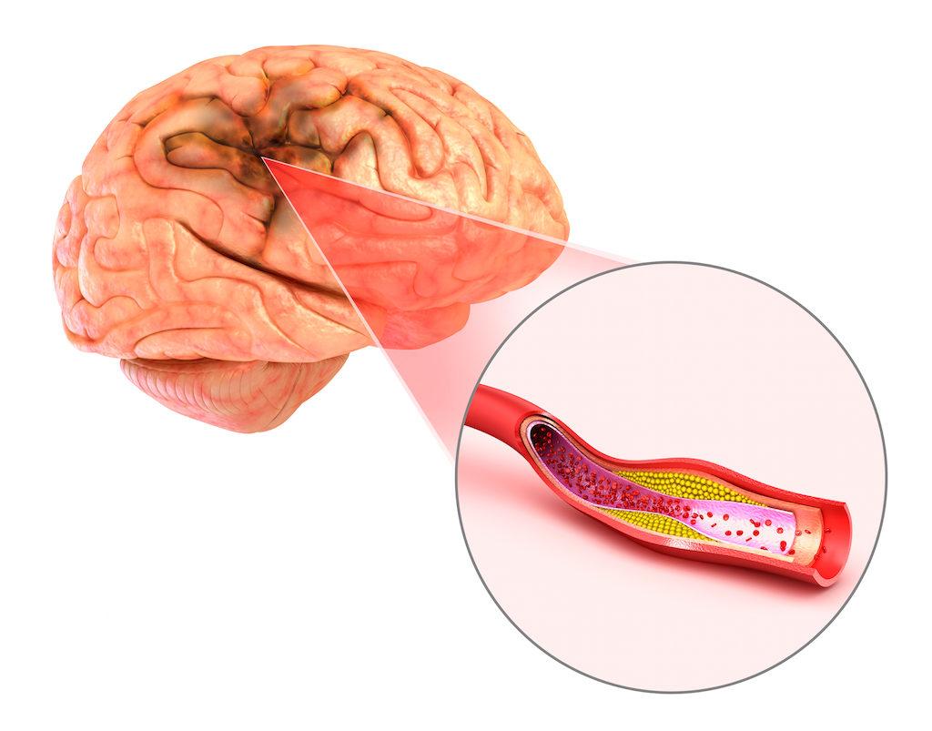 صورة اعراض ما بعد الجلطة الدماغية , بعض المعلومات تفيد فى الوقاية