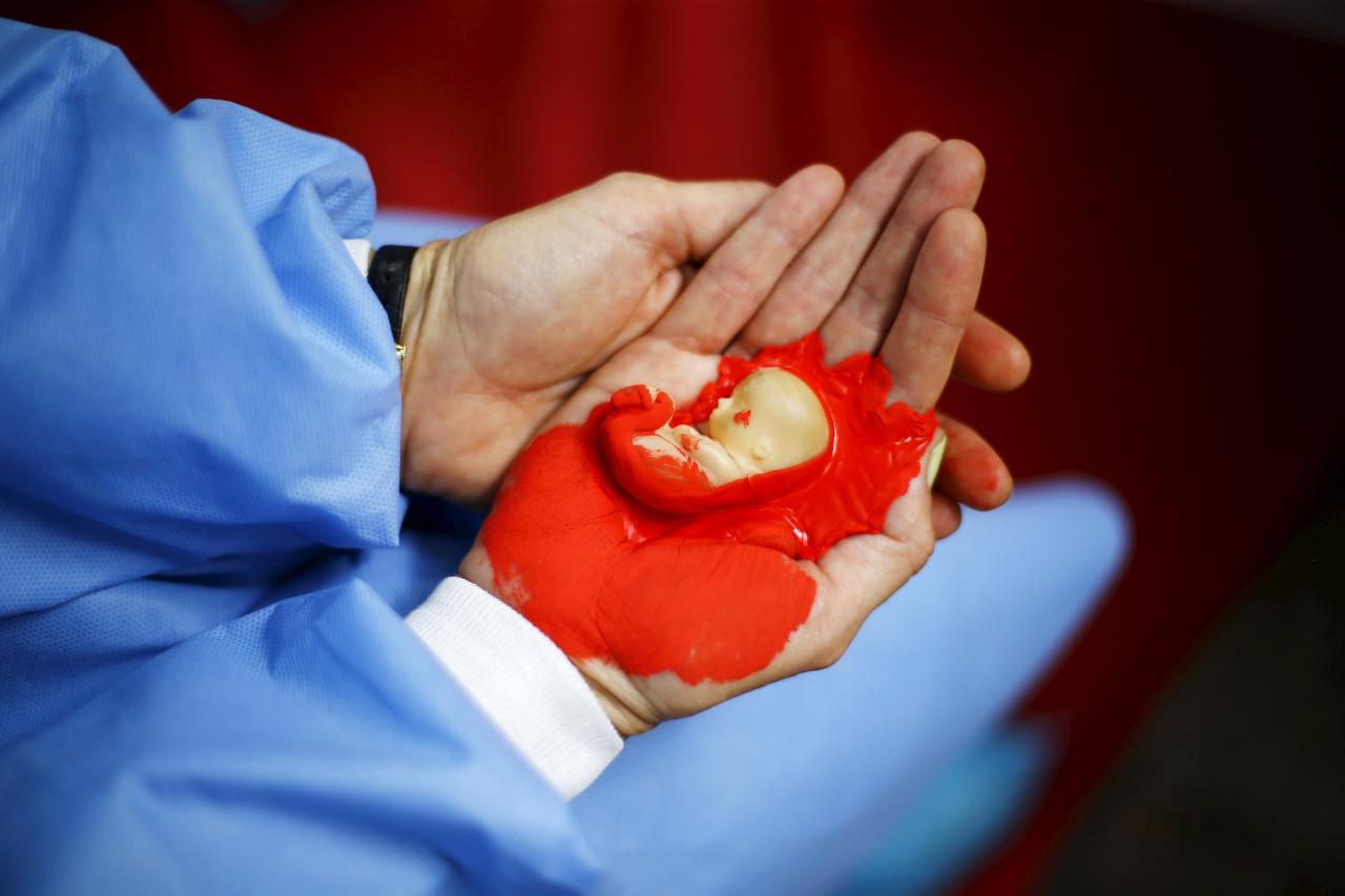 صورة لتنظيف الرحم بعد الاجهاض , معلومة مهمة و مفيدة