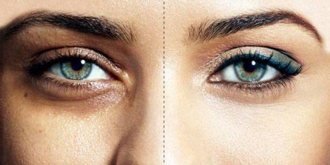 صورة اسباب الهالات السوداء تحت العين , عيون اجمل بلا سواد