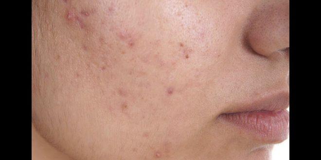 صورة طريقة التخلص من حبوب الوجه , وجهك مثل البدر فى ثوانى