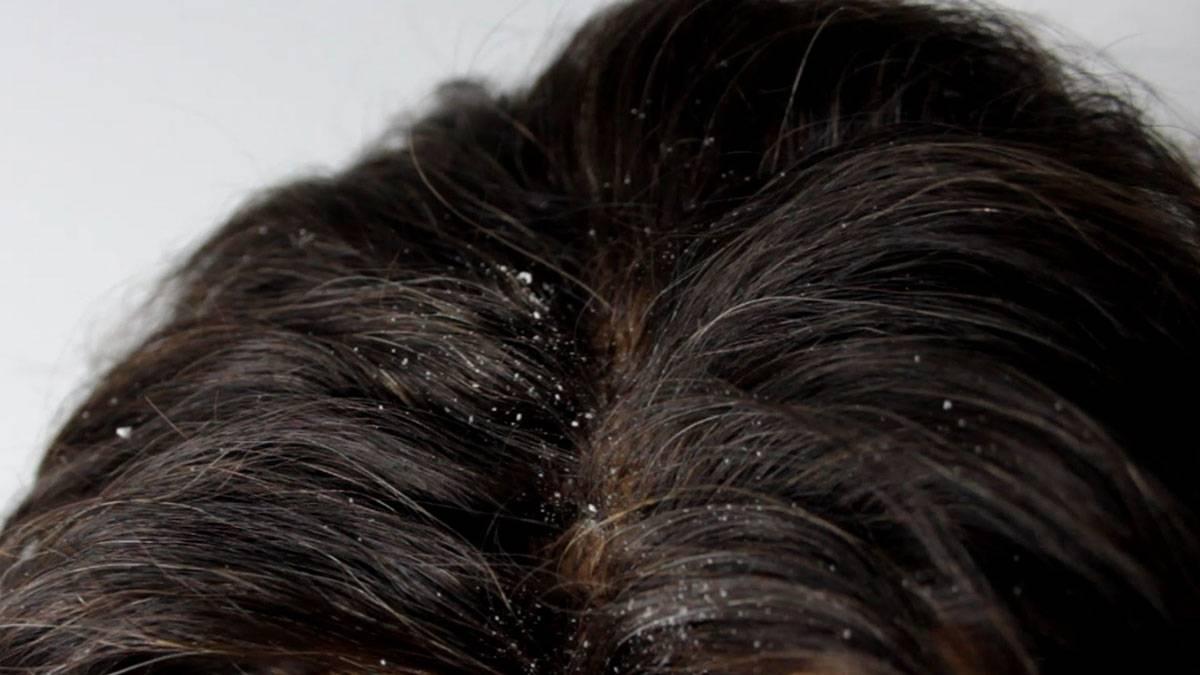 صورة علاج قشرة الشعر للرجال , شعر صحى لجذبية اكثر