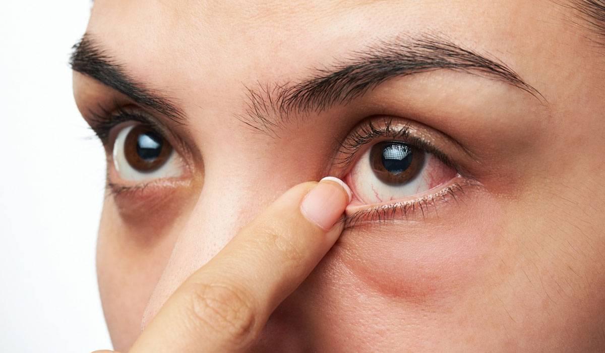 صورة اسباب صغر العين , لا تقلقى من العين الصغيرة