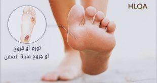 صورة علاج الام القدمين لمرضى السكري , افضل علاج لوجع القدم