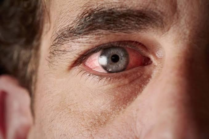 صورة معلومات عن العين , حاجات غريبة عن العين