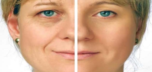 صورة علاج ترهل الوجه , وسائل التخلص من تجاعيد البشرة