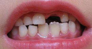 تفسير تساقط الاسنان , اقري هيحصلك اي لو حلمت باسنانك سقطت