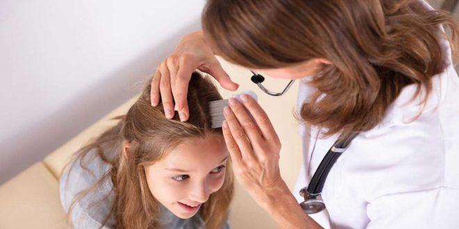 صورة تساقط شعر الاطفال , ظاهرة تساقط الشعر