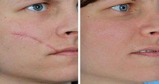 صورة علاج جروح الوجه , وجه جميل بلاتشوهات