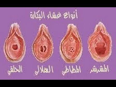 صورة غشاء بكارة المطاطي بالصور , ماهو الغشاء المطاطى وكيفيه التعامل معه