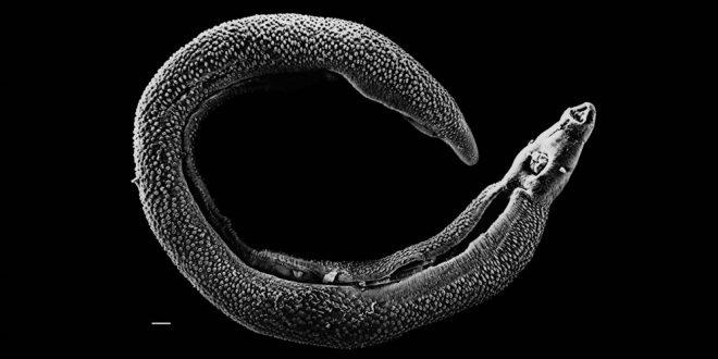 صورة ما اسم العالم الذي اكتشف الدوده التي تسبب مرض البلهارسيا , العالم الذى ساعد الملايين على الحياة