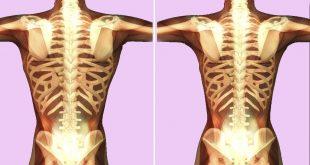 هرمون تكبير العظام , اكل صحى عظام اقوى