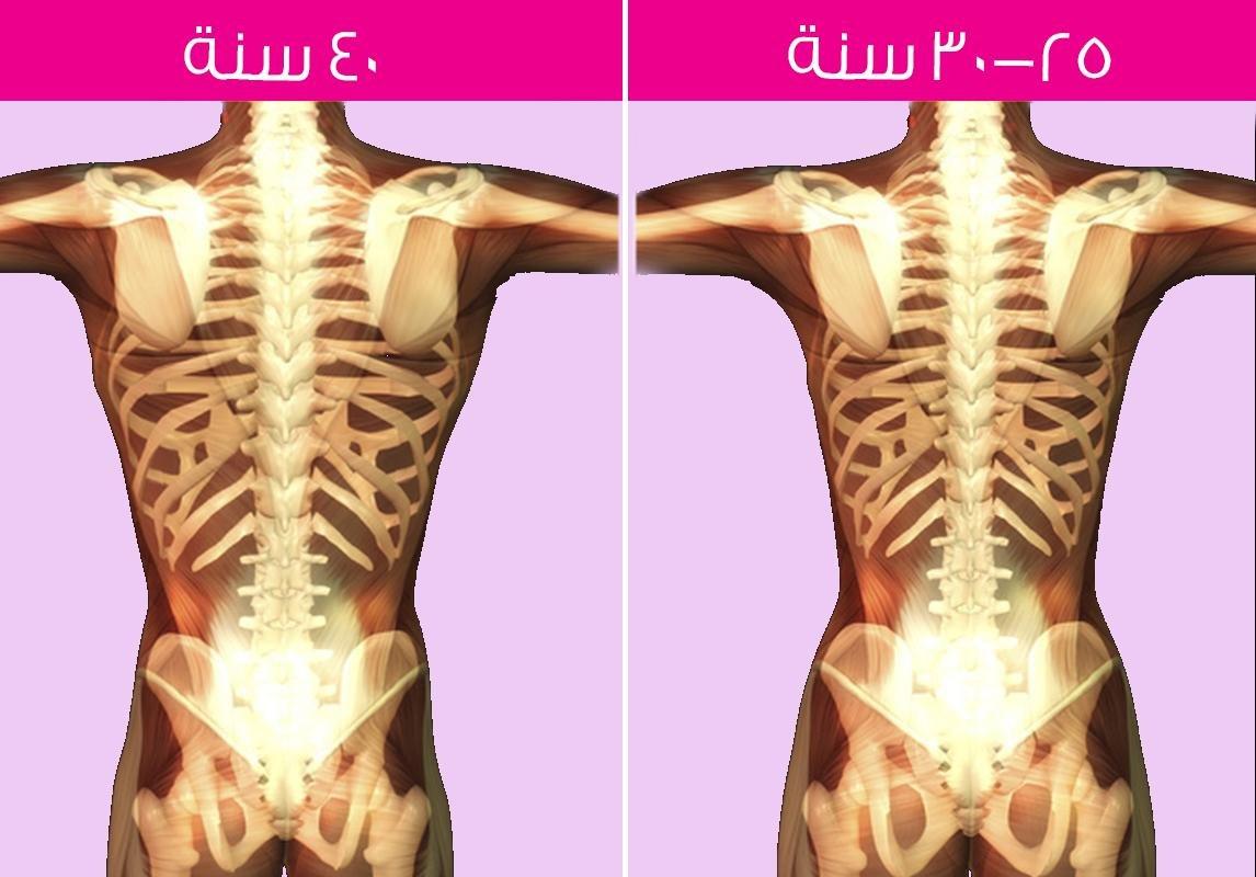 صورة هرمون تكبير العظام , اكل صحى عظام اقوى