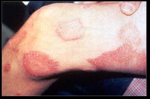 صورة اعراض مرض الجذام , مرض قديم لا تعرف عنة