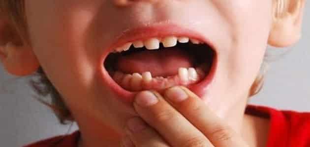 صورة تفسير حلم سقوط السن السفلي , تأويل سقوط الأسنان السفليه فى المنام