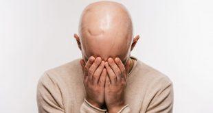 صورة علاج تساقط الشعر عند الرجال من الامام , هل تبحث عن علاج للصلع الحل هنا وبس