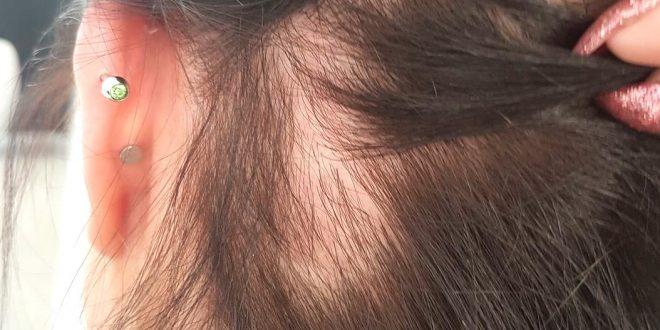 صورة علاج ثعلبة الراس , وصفات سهله وبسيطه لعلاج الثعلبه